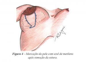 Figura 4 – Marcação da pele com azul de metileno após remoção da sutura