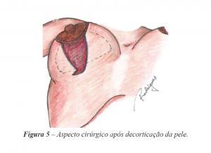 Figura 5 – Aspecto cirúrgico após decorticação da pele